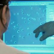 Où se trouve l'aluminium dans nos cellules ?
